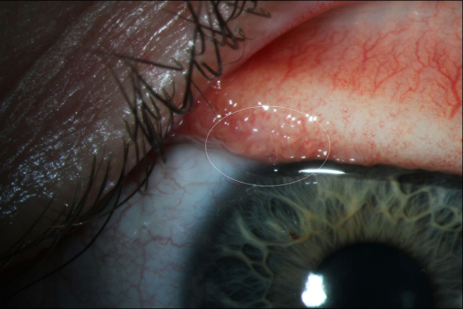 A transparent eye worm on the surface of a patient's conjunctiva. \